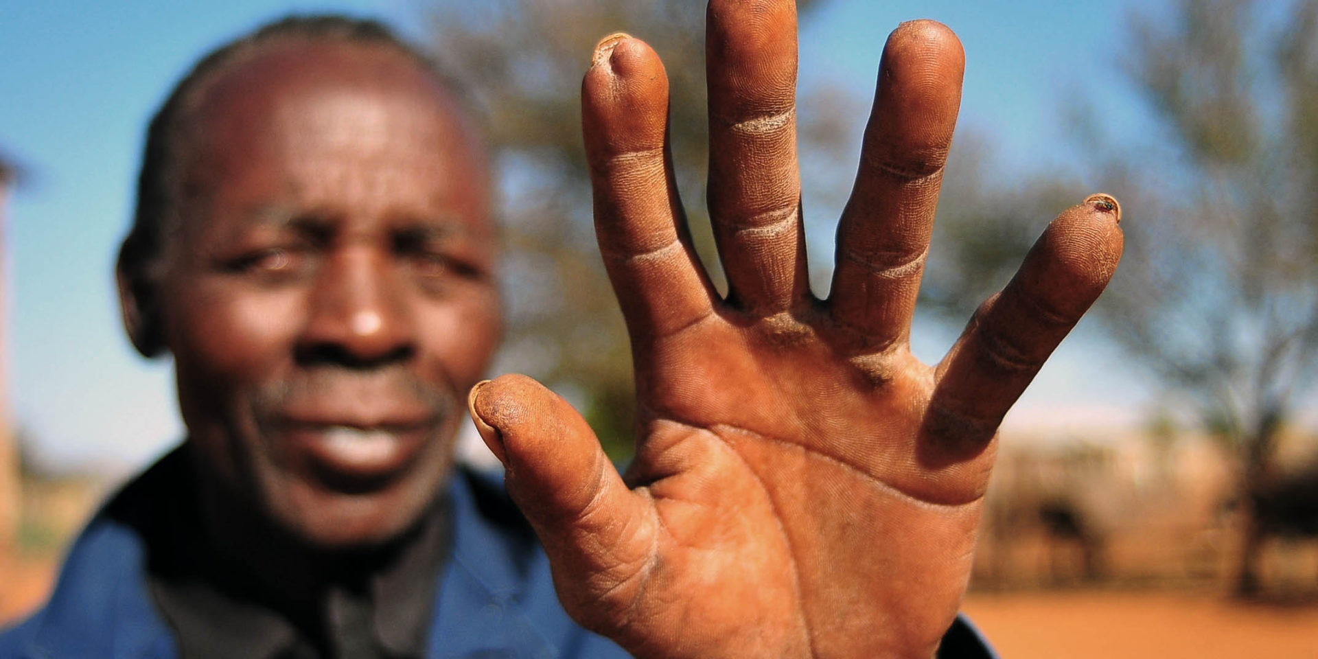 29 August 2018: Samuel Morudu holds up his hand to show his injury.
