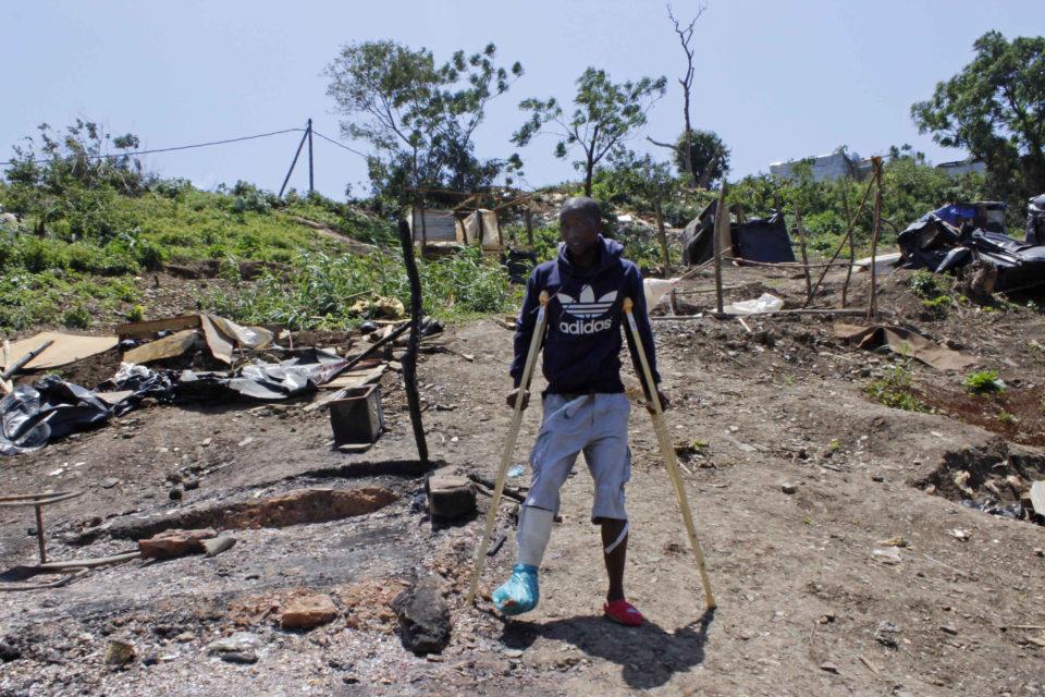 Landu Tshazi says he was shot twice with rubber bullets. Photograph by Nomfundo Xolo