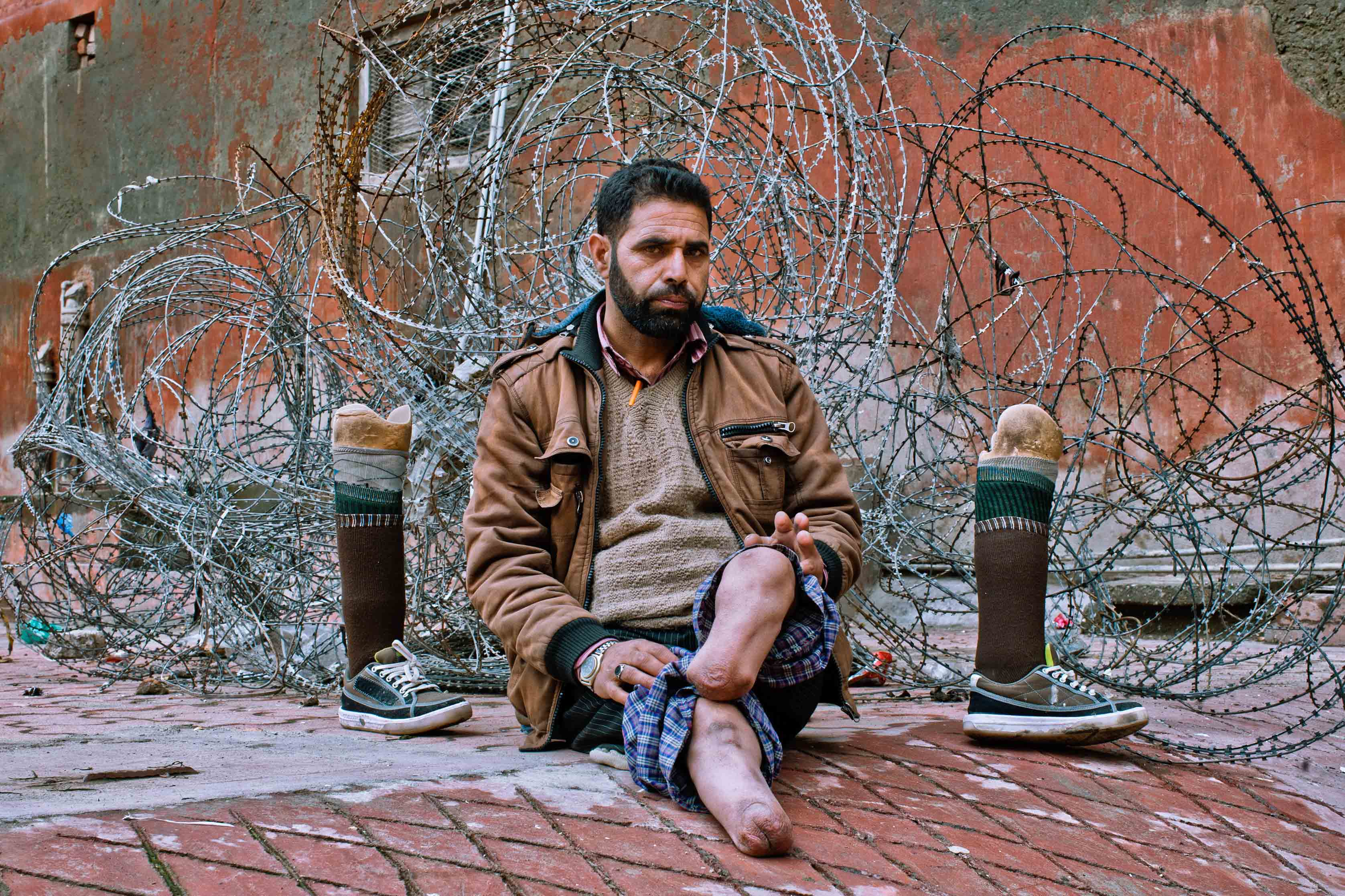 19 October 2016: Torture victim Nazir Ahmad Sheikh, 46, photographed with his prosthetic legs in Srinagar, the summer capital of Indian-administered Kashmir. North Kashmir resident Sheikh says despite having no militancy or criminal record, he was picked up and tortured by the Indian army's 14 Dogra Regiment in December 1994. Sheikh lost four fingers and both feet, and had to sell ancestral land to buy artificial limbs. (Photograph by Yawar Nazir/Getty Images)
