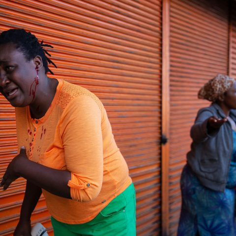 7 August 2019: One of the rubber bullets fired by police during their raid caught Primrose Mupfeki from Zimbabwe on the ear.
