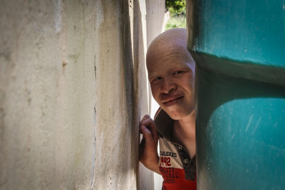 10 February 2018: Mthokozisi Mabika, 13, is living with albinism. He was almost abducted by a family member who wanted to kill him for money.
