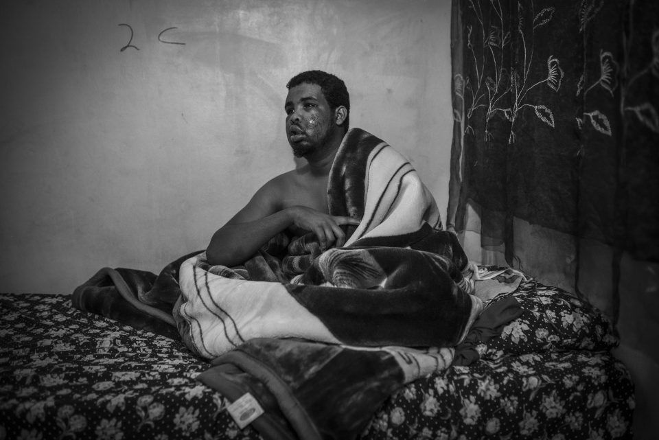 26 June 2016: Somalian Ahmed Ibrahim Hashi recovering in a safe house after being severely beaten in Atteridgeville, Tshwane. (Photograph by Ihsaan Haffejee)