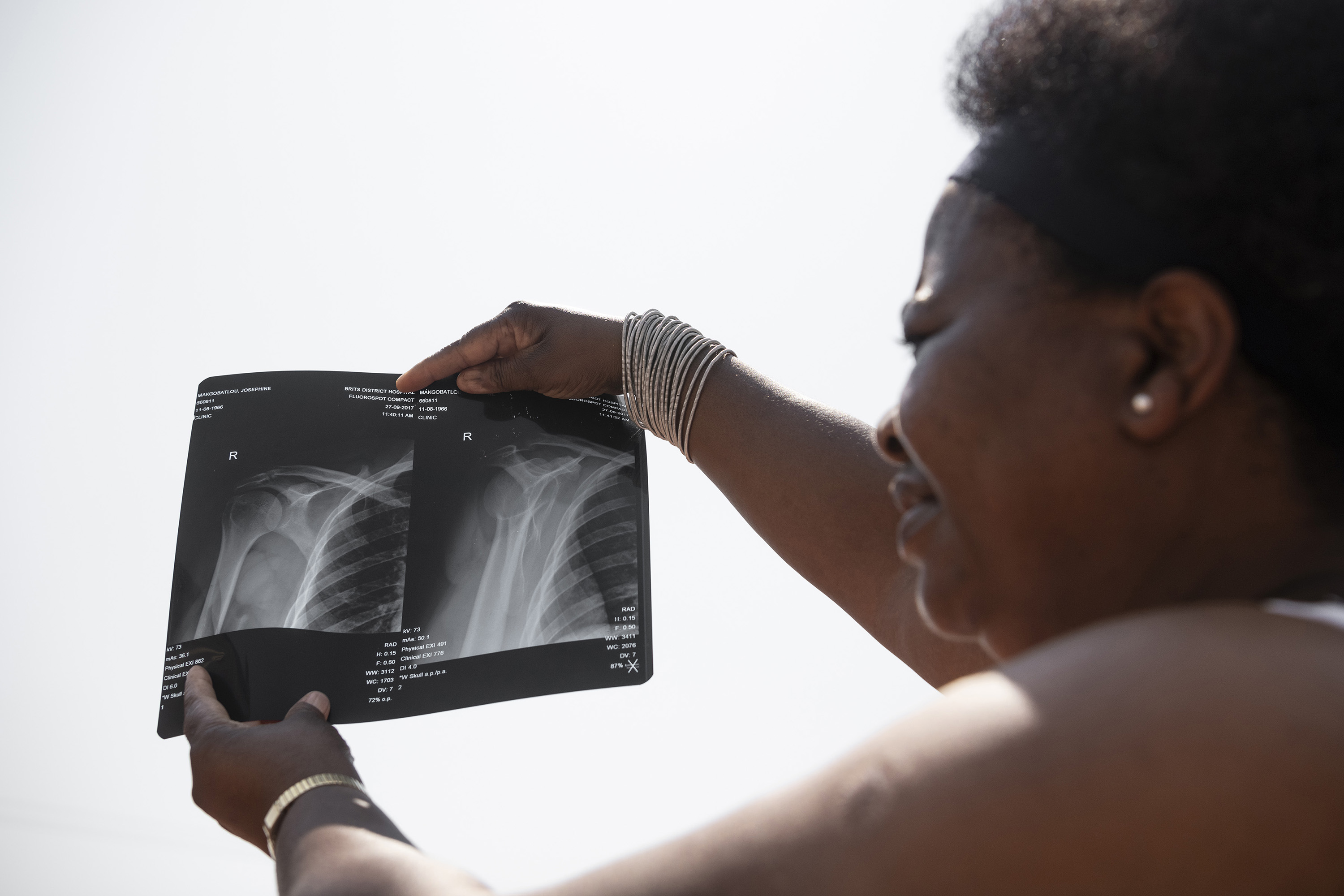 23 September 2019: Poppy Makgobatlou with X-rays of her shoulder showing the injuries she sustained when her former husband beat her.