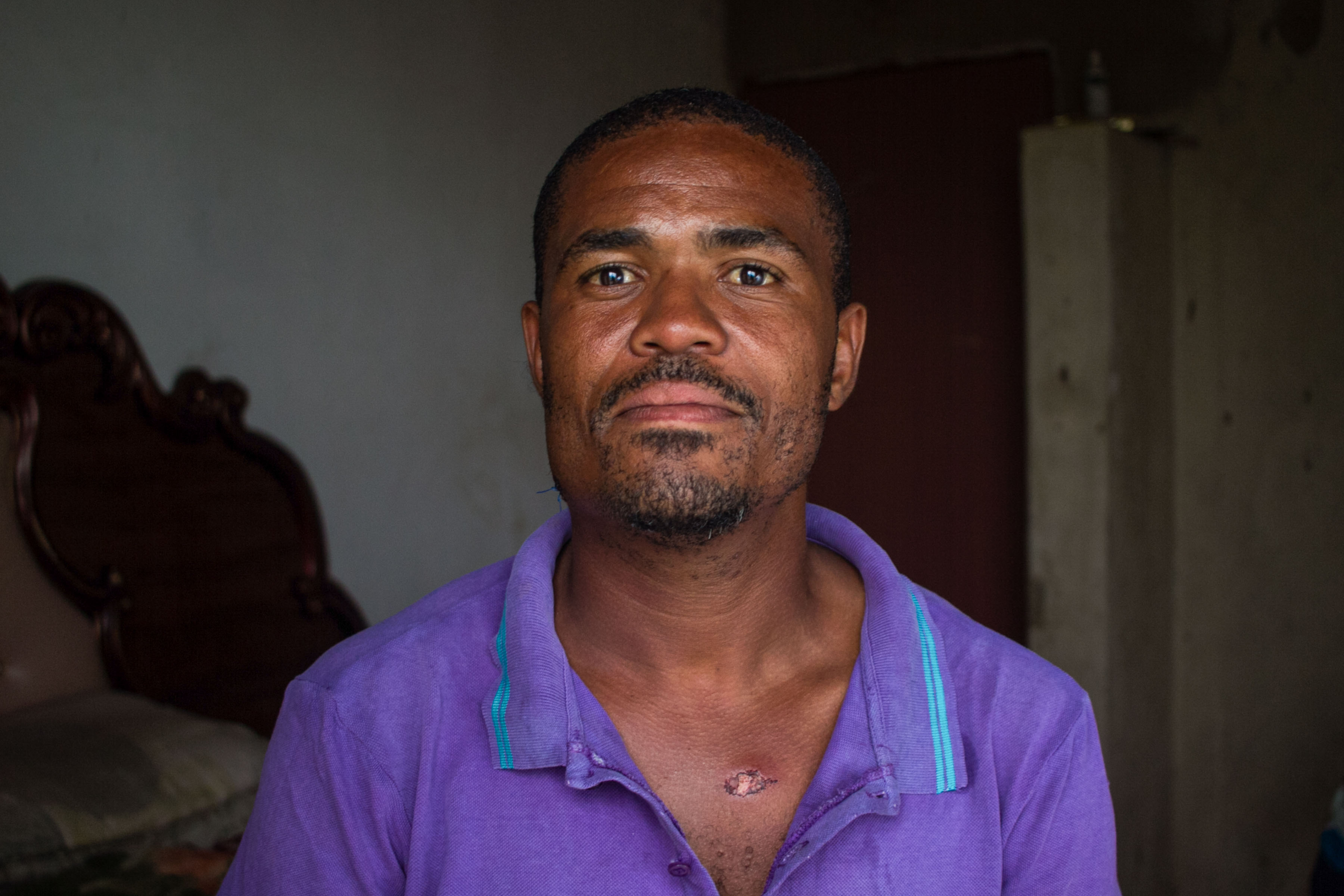 4 December 2019: Horizon Chrome electrician William Ndaba was sitting under a tree when the security guards opened fire on him, leaving a rubber bullet embedded under his chin.