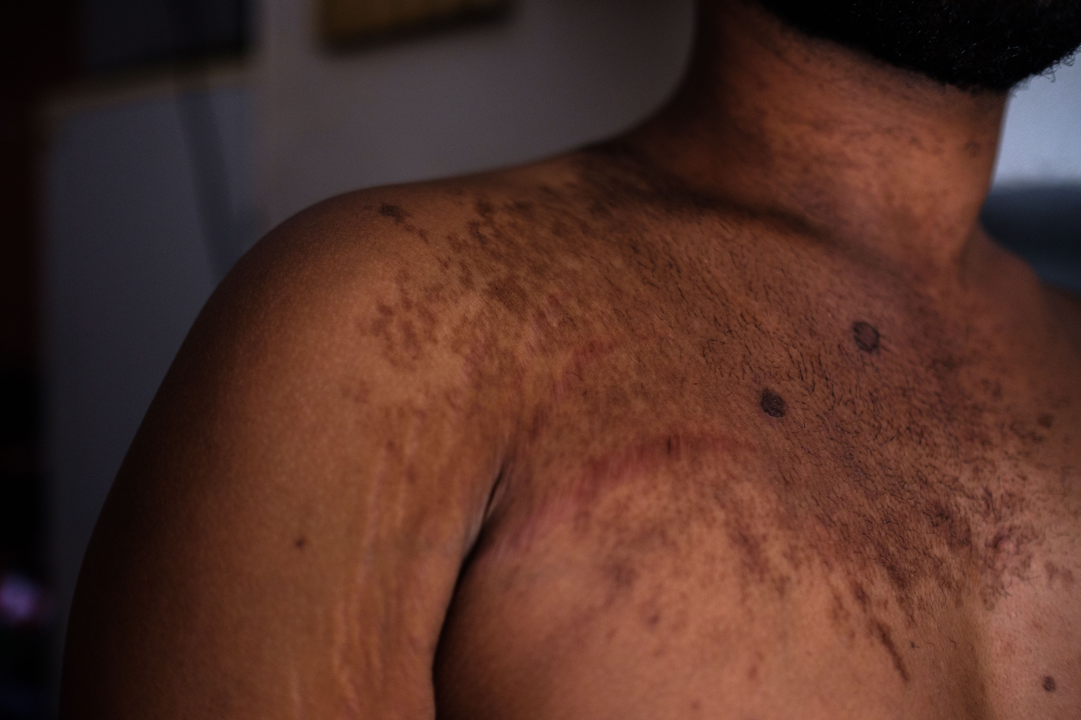 9 December 2019: Ishmael has been assaulted more than 20 times since arriving in South Africa and his father tried to have him killed multiple times before that. The scars on his chest are from past assaults.