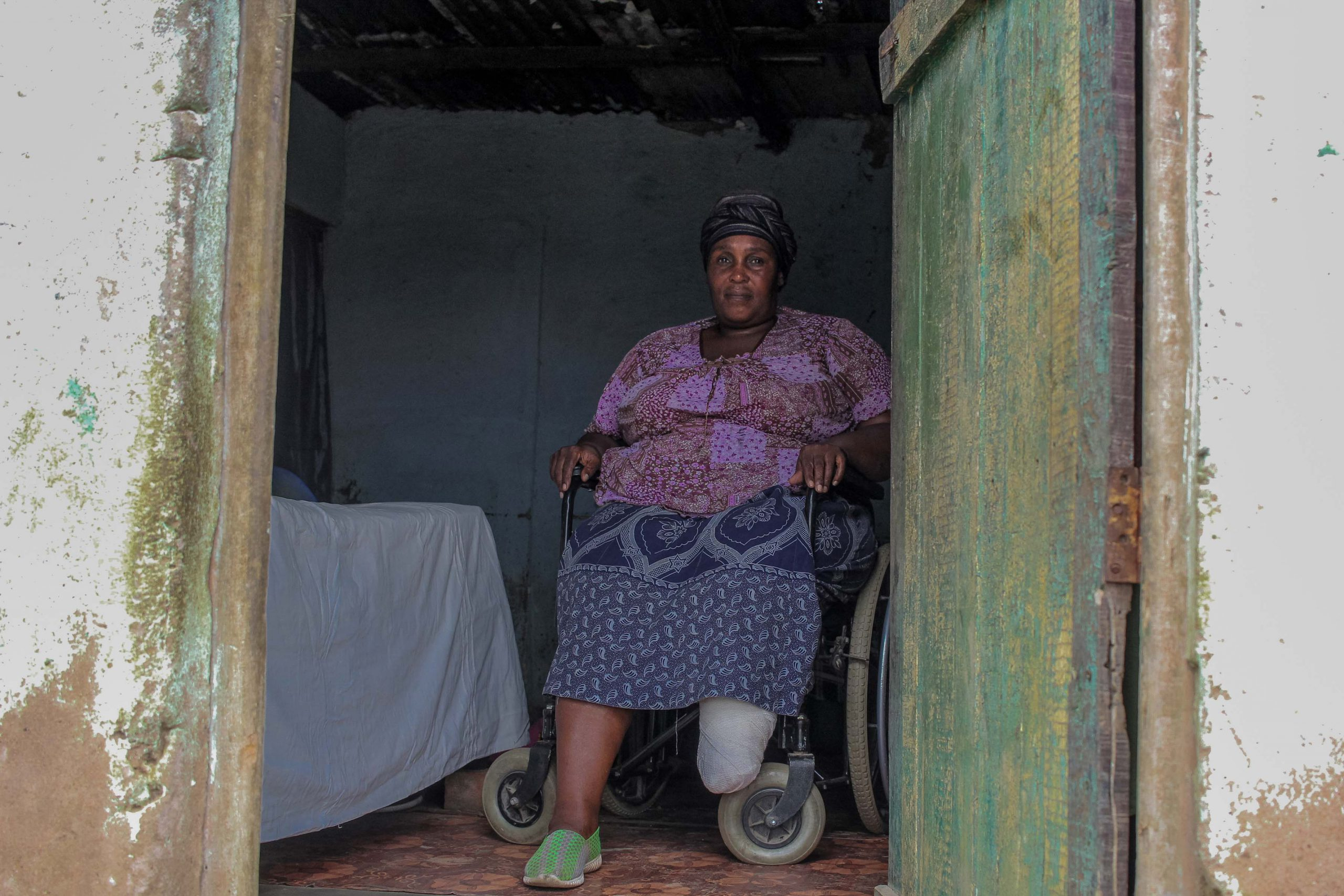22 January 2020: Ntombizanele Spenuka lost a foot to diabetes three years ago. Her daughter helps her get around in a borrowed wheelchair, but she is not able to use the communal toilets and showers.