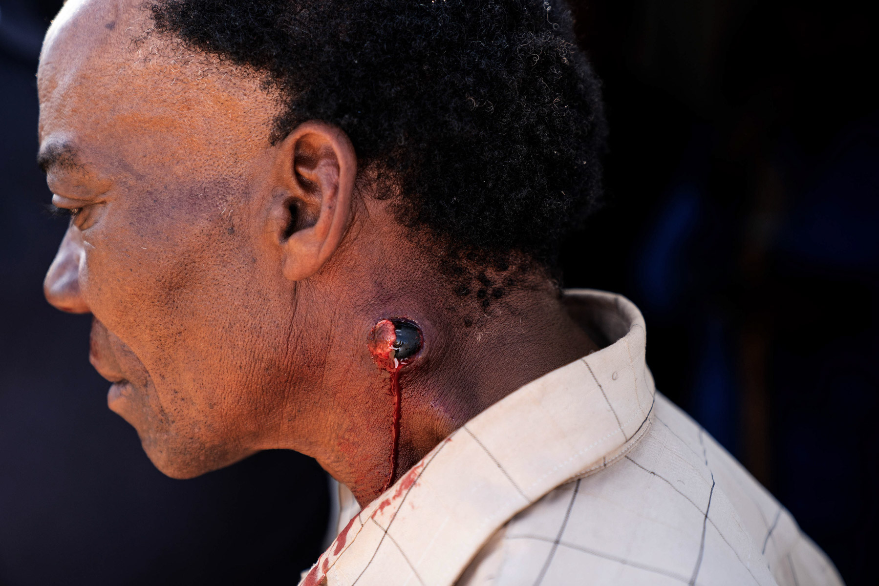 21 April 2020: A metro police officer shot Stanley Zaki in the neck at close range with a rubber bullet, which lodged in his flesh. (Photograph by James Oatway)